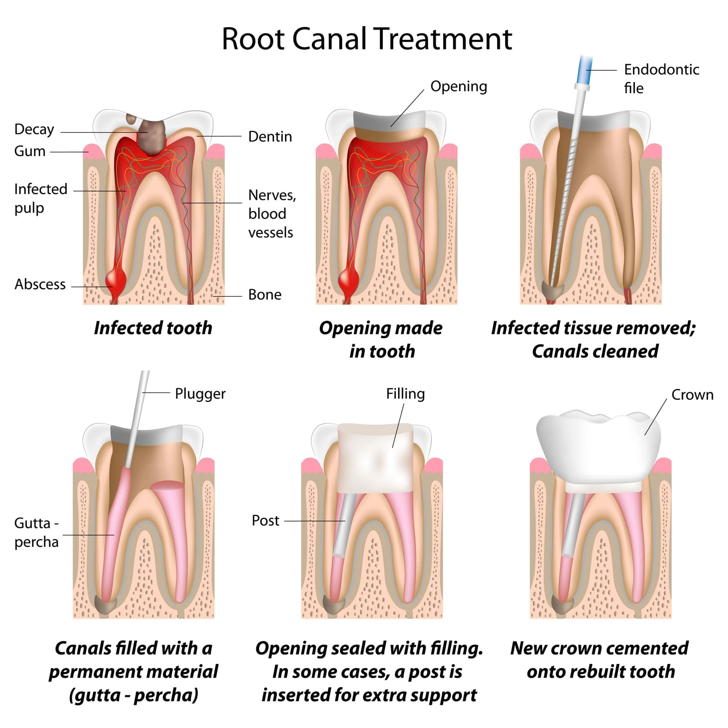Root Canal Therapy in Langley