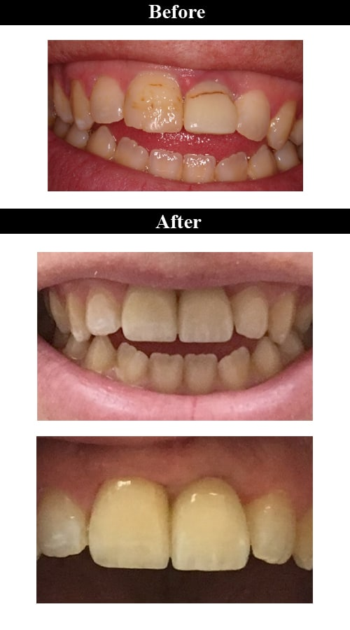 Smile Gallery- Before & After Implant Crowns
