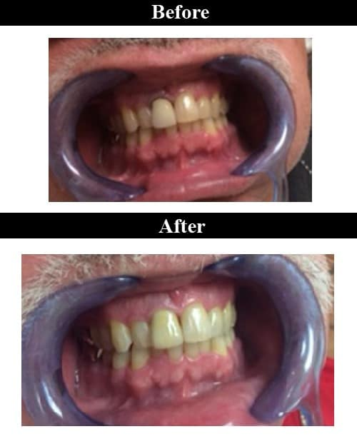 Smile Gallery - Before & After Dental Crowns