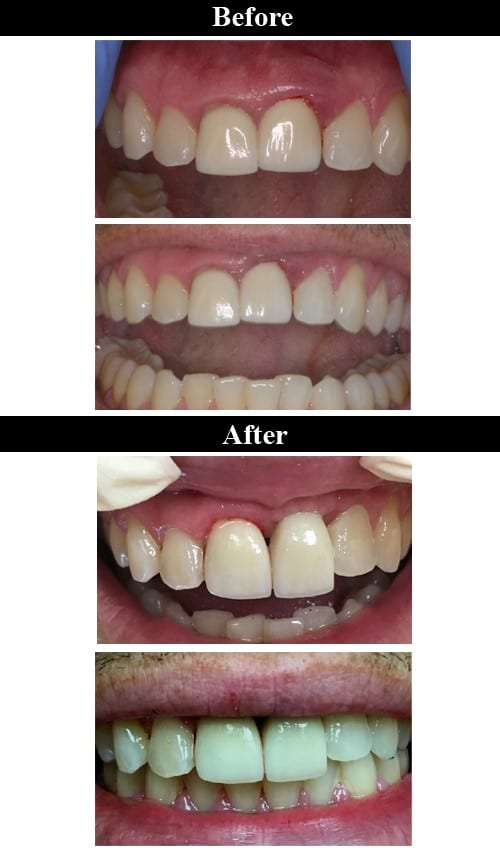 Before & After Implant Crowns