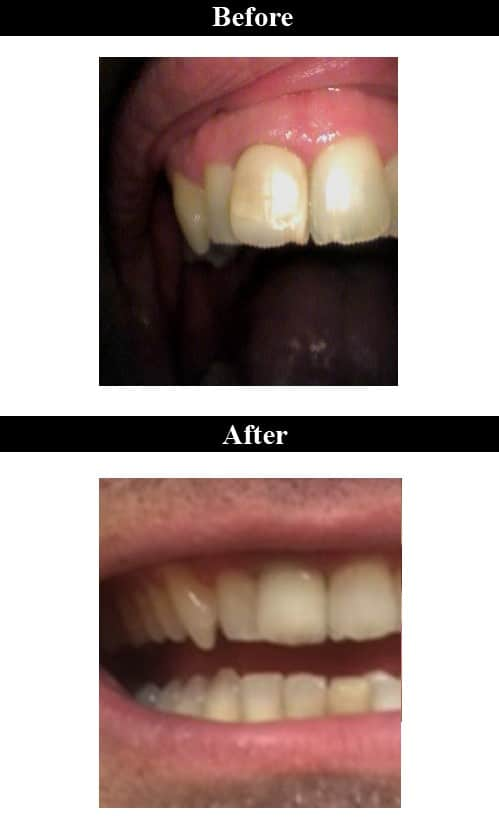 Before & After Ceramic Crowns