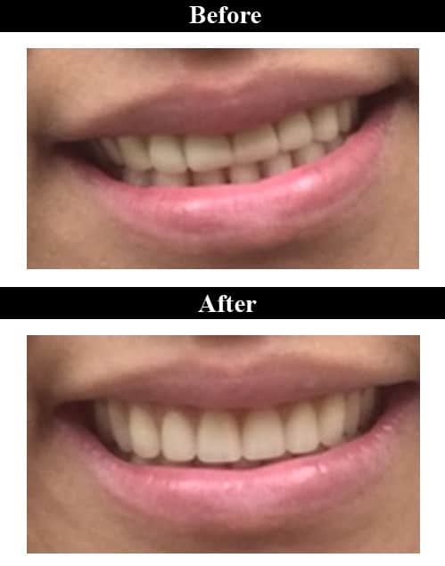 Smile Gallery - Before & After Dentures