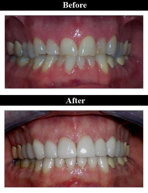 Smile Gallery - Before & After Crowns & Veneers