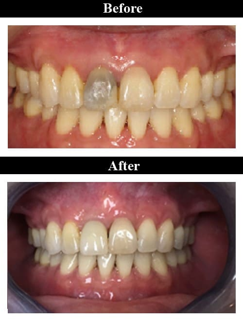 Smile Gallery - Before & After Implant Supported Crown