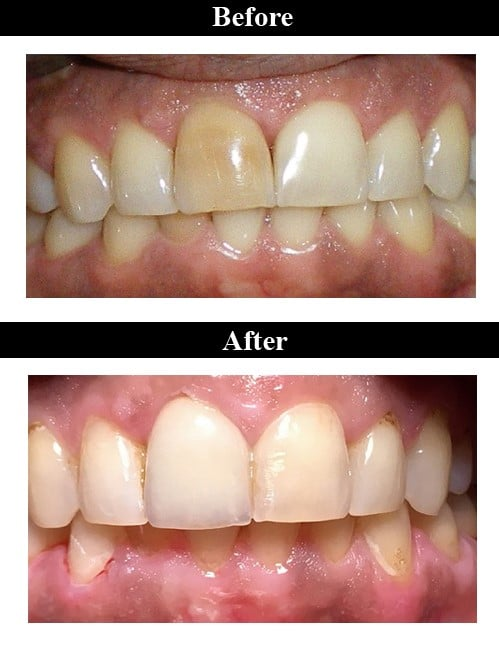 Smile Gallery - Before & After Ceramic Crown